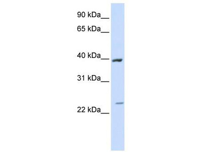 Rabbit Polyclonal Anti-ACADL Antibody