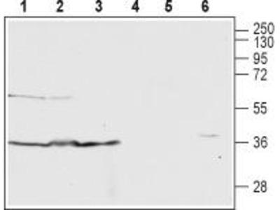 Rabbit Polyclonal Anti-C5a Anaphylatoxin Receptor (extracellular)
