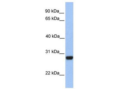 Rabbit Polyclonal Anti-PAOX Antibody