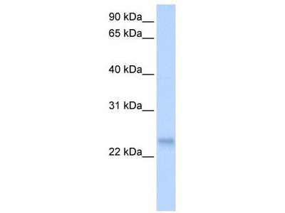 Rabbit Polyclonal Anti-SFRS3 Antibody