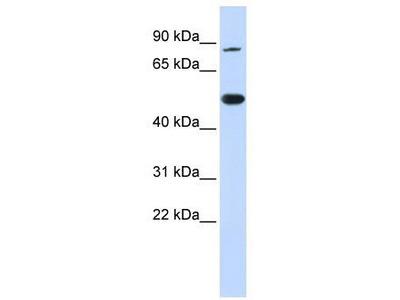 Rabbit Polyclonal Anti-TRMT1 Antibody