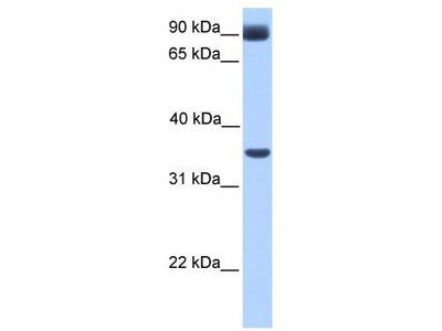 Rabbit Polyclonal Anti-CIR Antibody