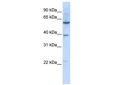 Rabbit Polyclonal Anti-SLC35F3 Antibody