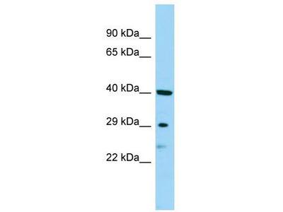 Rabbit Polyclonal Anti-SBSN Antibody
