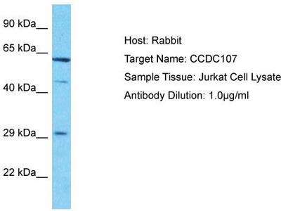 Rabbit Polyclonal Anti-CCDC107 Antibody