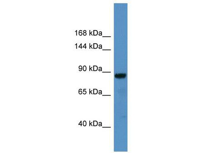 Rabbit Polyclonal Anti-CADPS Antibody
