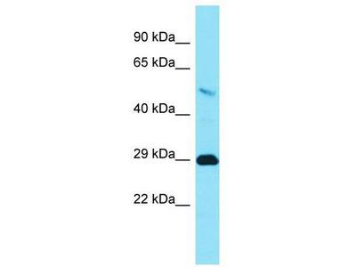 Rabbit Polyclonal Anti-TMEM65 Antibody