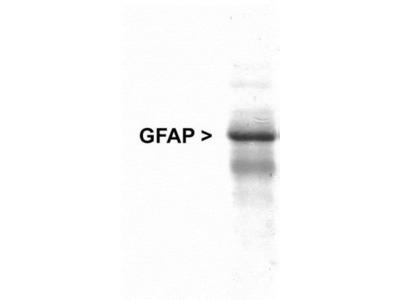 Chicken Polyclonal GFAP Antibody