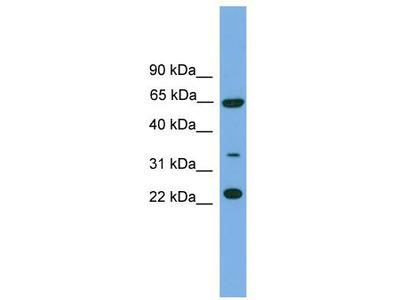 Rabbit Polyclonal Anti-TRAPPC5 Antibody