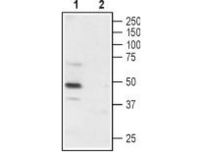 Rabbit polyclonal Anti-P2X3 (extracellular)
