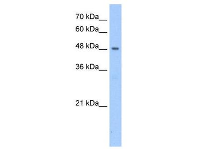 Rabbit polyclonal anti-PNPLA5 antibody