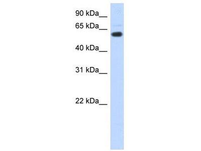 Rabbit polyclonal Anti-CDYL Antibody