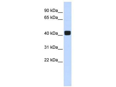 Rabbit Polyclonal Anti-TRIOBP Antibody