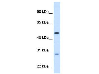 Rabbit Polyclonal Anti-ECHS1 Antibody