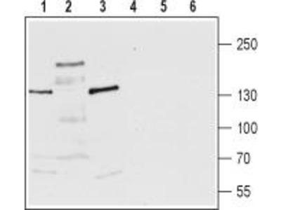 Rabbit Polyclonal Anti-TRPM3 (extracellular)
