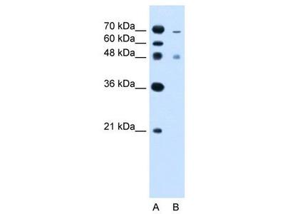 Rabbit Polyclonal Anti-ZFYVE27 Antibody