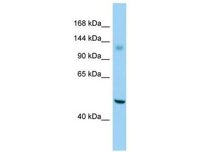 Rabbit Polyclonal Anti-GPR158 Antibody