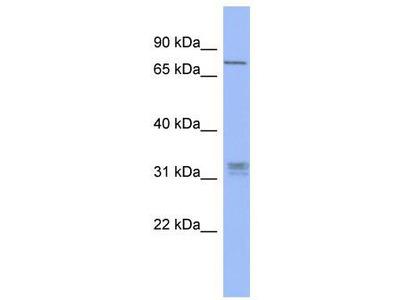 Rabbit Polyclonal Anti-PRDM8 Antibody