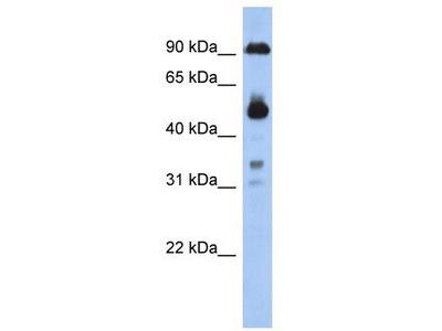Rabbit Polyclonal Anti-CCDC144B Antibody