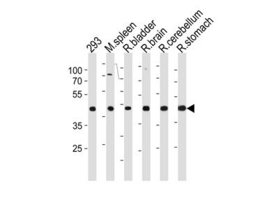 Rabbit polyclonal anti-R Ccdc89 antibody (Center)