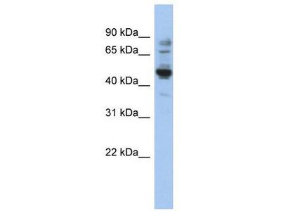 Rabbit Polyclonal Anti-PRAME Antibody