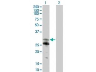 Rabbit Polyclonal NFAM1 Antibody