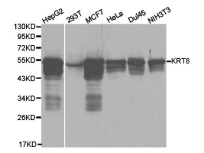 KRT8 Rabbit Polyclonal Antibody