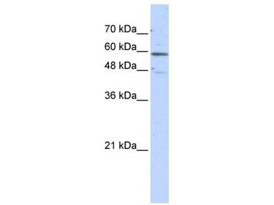 Rabbit Polyclonal Anti-GLUD2 Antibody
