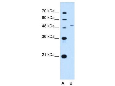 Rabbit Polyclonal Anti-SLC29A2 Antibody