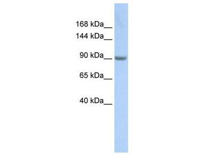 Rabbit Polyclonal Anti-MARS Antibody