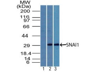 Rabbit Polyclonal Snail Antibody