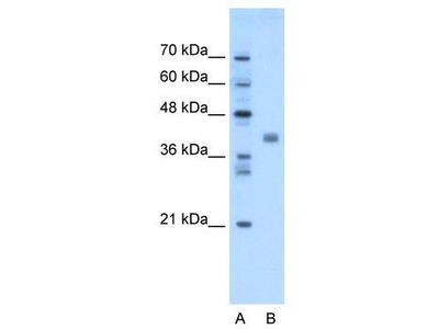 Rabbit Polyclonal Anti-TMEM59L Antibody