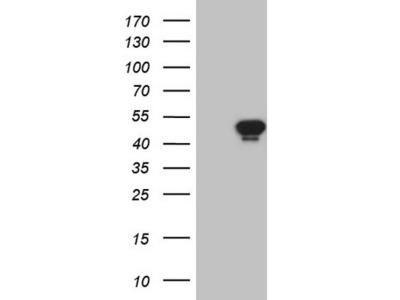 AMACR mouse monoclonal antibody, clone OTI3H10 (formerly 3H10)