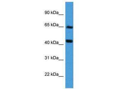 Rabbit Polyclonal Anti-COL8A2 Antibody