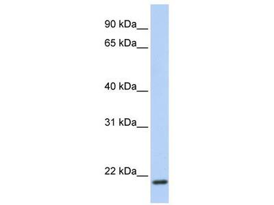 Rabbit Polyclonal Anti-TMEM35 Antibody