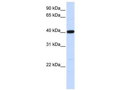 Rabbit Polyclonal Anti-TMOD3 Antibody