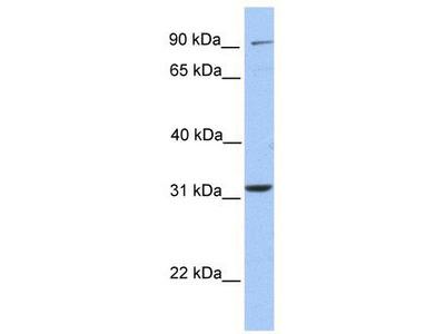 Rabbit Polyclonal Anti-ELFN2 Antibody