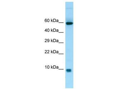 Rabbit Polyclonal Anti-S100A7A Antibody