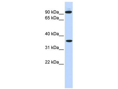 Rabbit Polyclonal Anti-EXT2 Antibody