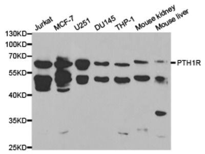 Rabbit anti-PTH1R Polyclonal Antibody