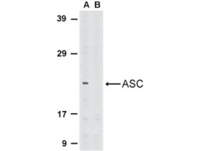 Rabbit Polyclonal ASC/TMS1 Antibody
