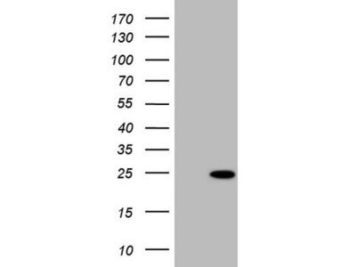 TNNI2 mouse monoclonal antibody, clone OTI1H1 (formerly 1H1)