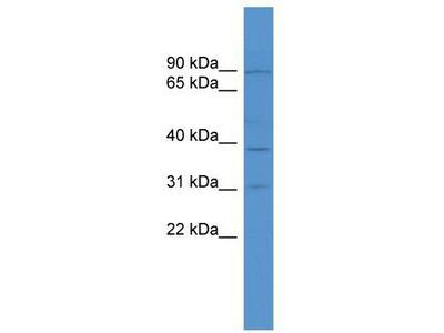 Rabbit Polyclonal Anti-MGC51025 Antibody
