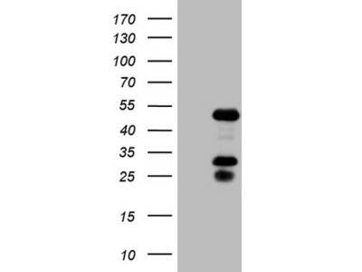 NR2F6 mouse monoclonal antibody, clone OTI2H4 (formerly 2H4)