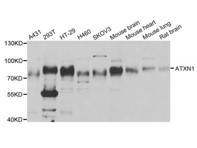 Rabbit anti-ATXN1 Polyclonal Antibody