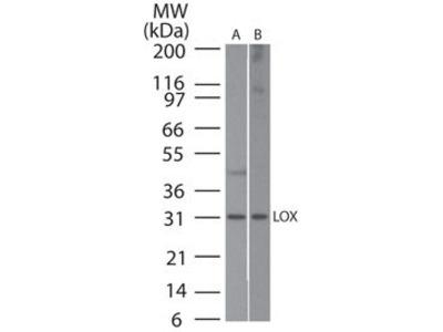 Rabbit Polyclonal LOX Antibody