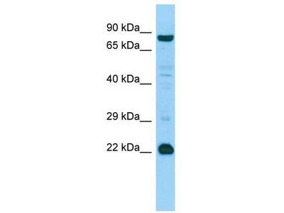 Rabbit Polyclonal Anti-MED22 Antibody