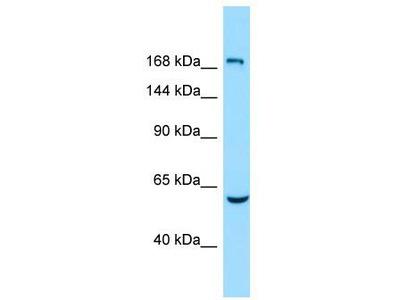 Rabbit Polyclonal Anti-EPB41L4B Antibody