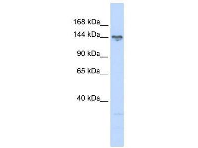 Rabbit Polyclonal Anti-TBC1D1 Antibody