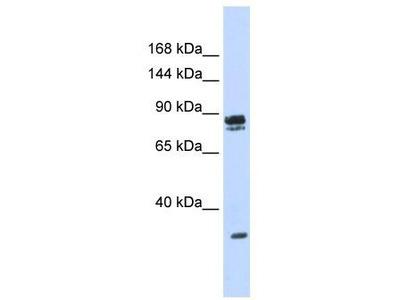 Rabbit Polyclonal Anti-PSD3 Antibody